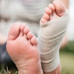 Taping your Bunions