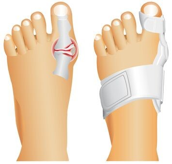 Bunion Taping and Splint