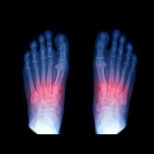 Lisfranc-injury-154x154