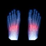 Lisfranc-injury-154x154