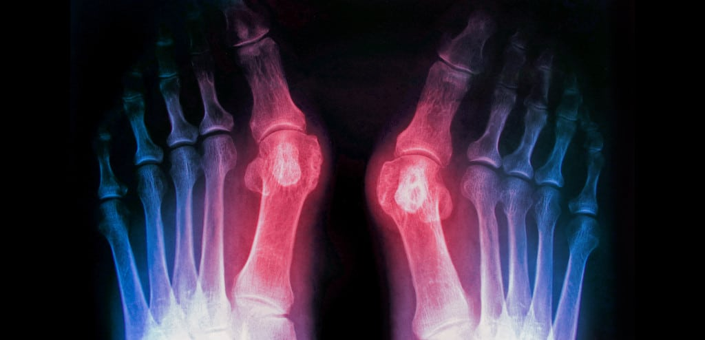 Bunion Treatments Symptoms Causes Surgery And Recovery