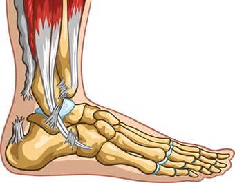 Achilles Tendon Injury: Recovery Time, Surgery & Treatment