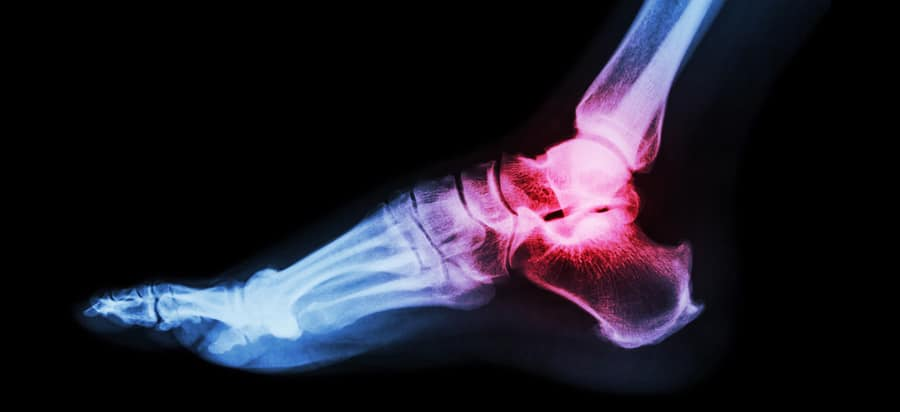 Broken Ankle - Treatments, Surgery and Recovery