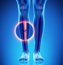 Fractures of the Tibia - Injury Causes, Symptoms and Treatments