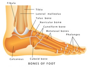 Your Broken Ankle Recovery Time, Treatment, & Surgery