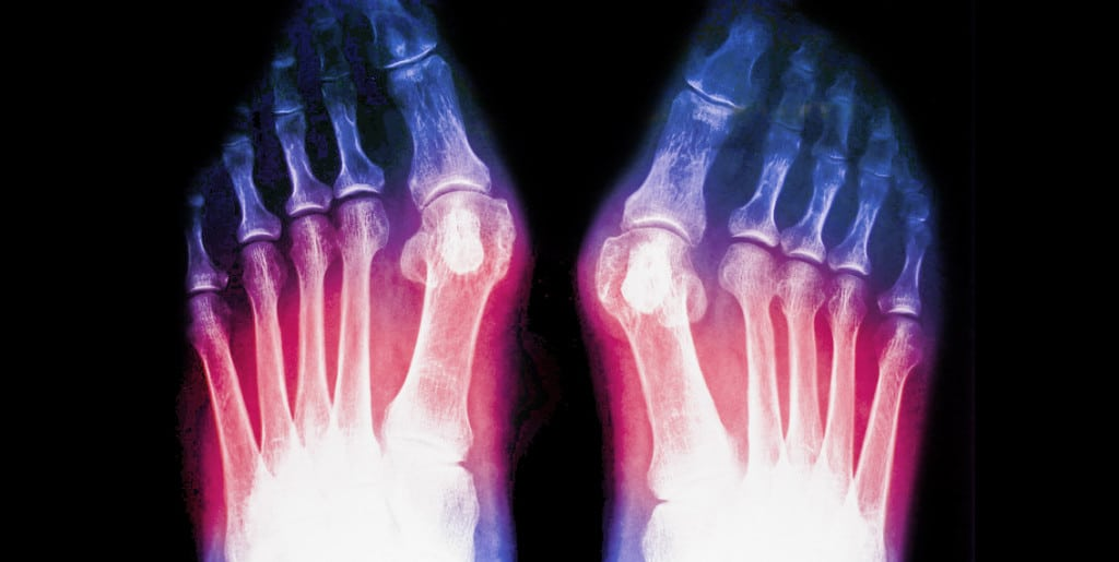 Jones Fracture: Symptoms, Treatments, Surgery & Recovery