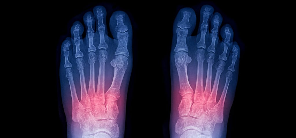 Lisfranc Injury: Surgery, Treatment, & Recovery Time