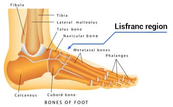 lisfranc fracture treatment