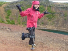 Michelle-hiking-heel-stress-fracture-crutches-220x167