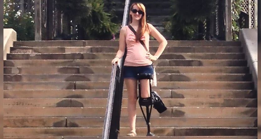 Iwalk20 Rescues Teenager From Life On Crutches