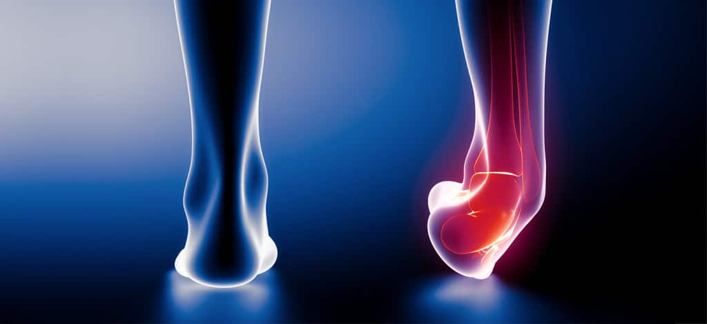 Sprained Ankle: Injury, Treatment, & Recovery Time