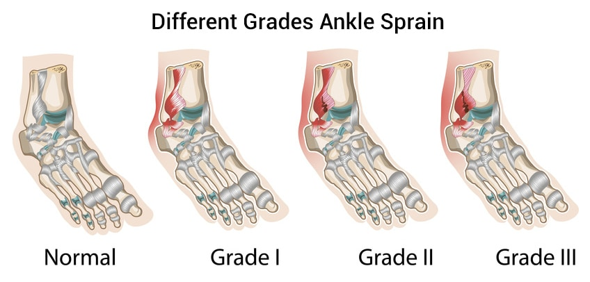 Types and Grades of Ankle Sprains