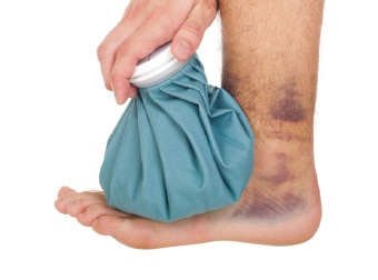 Sprained Ankle Treatment & Recovery