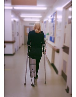 A Below the Knee Amputee Tells Her Inspirational Story