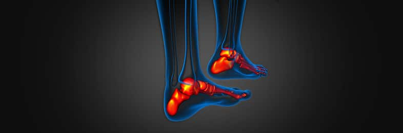 Stress Fractures Causes Symptoms Treatment Options
