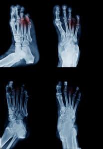 Metatarsal Fracture